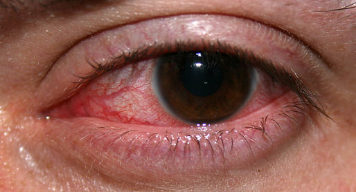 Las personas que sufren sequedad ocular suelen ser reacias a utilizar lentillas
